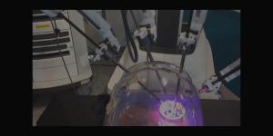 Da Vinci Surgery , un robot qui permet des opérations à distance